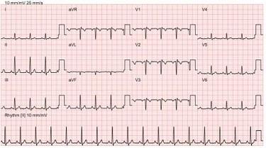 这是一个真实导联,显示在心电图轨迹中.