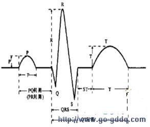 心电图波形